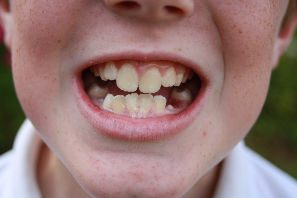 Son, Teeth, Gaps, Smile, 365