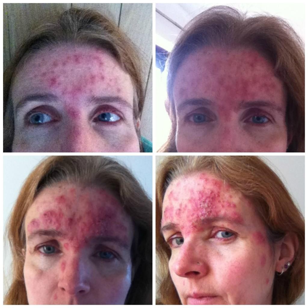 acne rosacea and roaccutane going downhill mum of three world