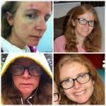 Roaccutane and dermatologist update