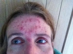 Eye infection, Acne, Selfie