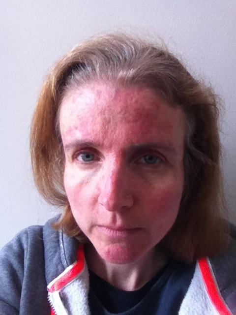 skin, selfie, rosacea, 365