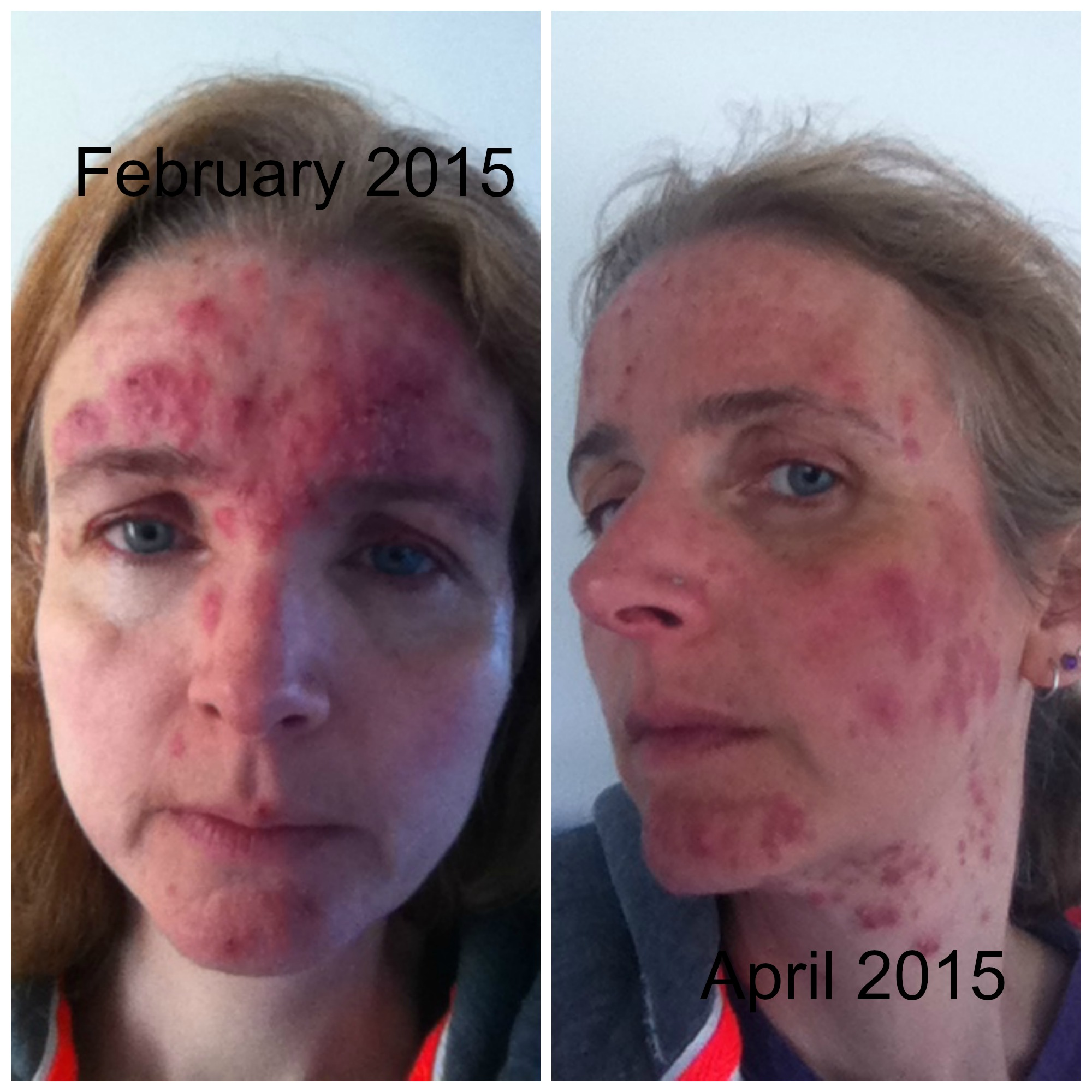 How To Reduce Rosacea Redness 8 Weeks