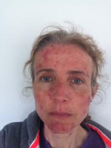 acne, rosacea, selfie