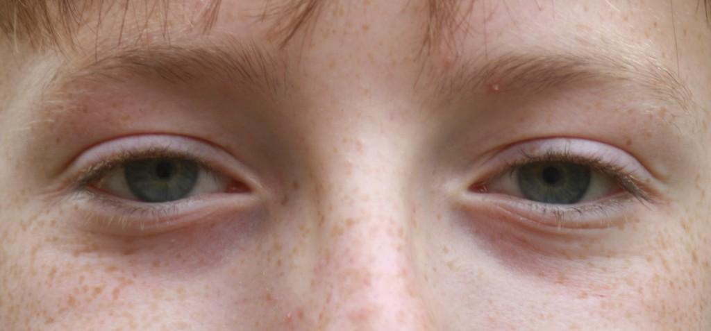 Eyes, Son, Contact lenses, 365