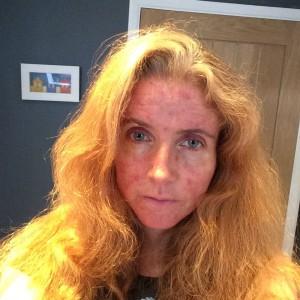 Selfie, Hair, Roaccutane