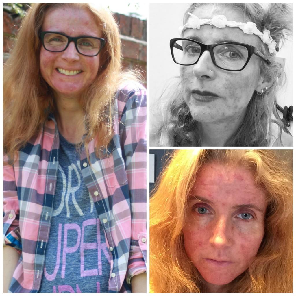 PicMonkey acnegettingbackCollage, Acne, Skin, Roaccutane