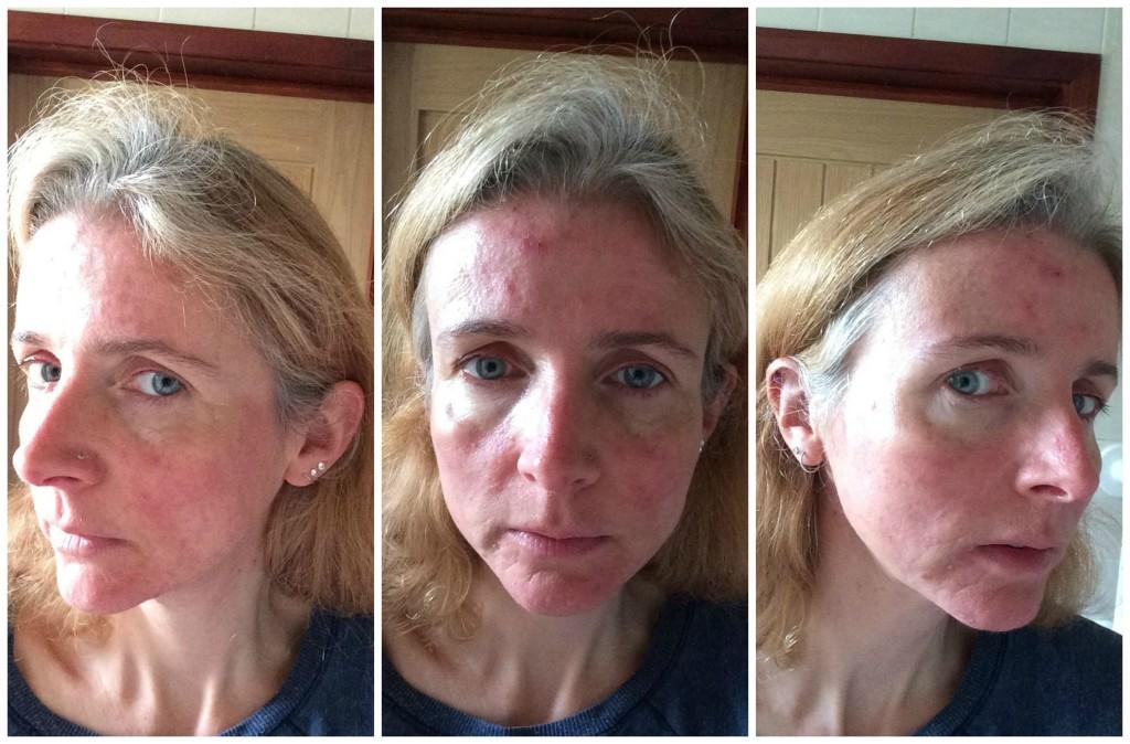 Accutane acne effet secondaire - Amoxil uti dose
