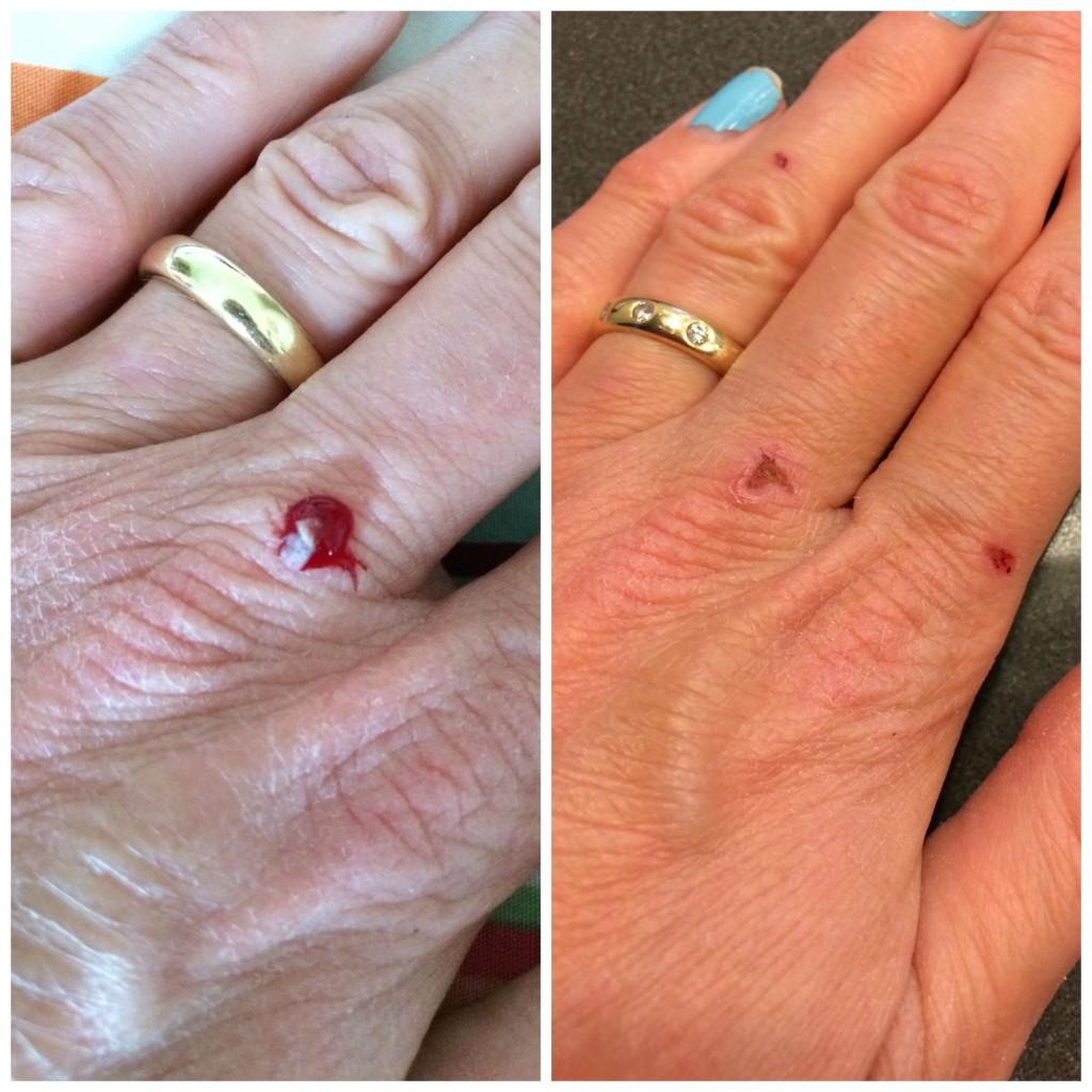 PicMonkey handsCollage, Roaccutane, Hands, Bleeding, Scabs