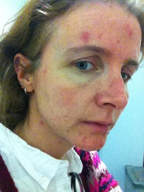 Acne, Skin
