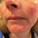 Acne, rosacea and Roaccutane – going downhill