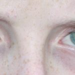 Contact lenses – one year on