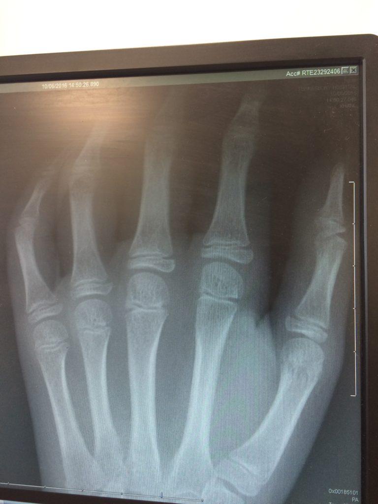 Daughter, X-ray, Hand, Silent Sunday, My Sunday Photo