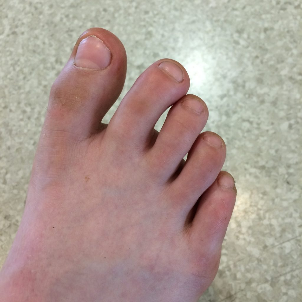 Toe, Son, Broken toe