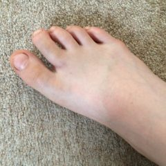 The broken toe and the drama performance
