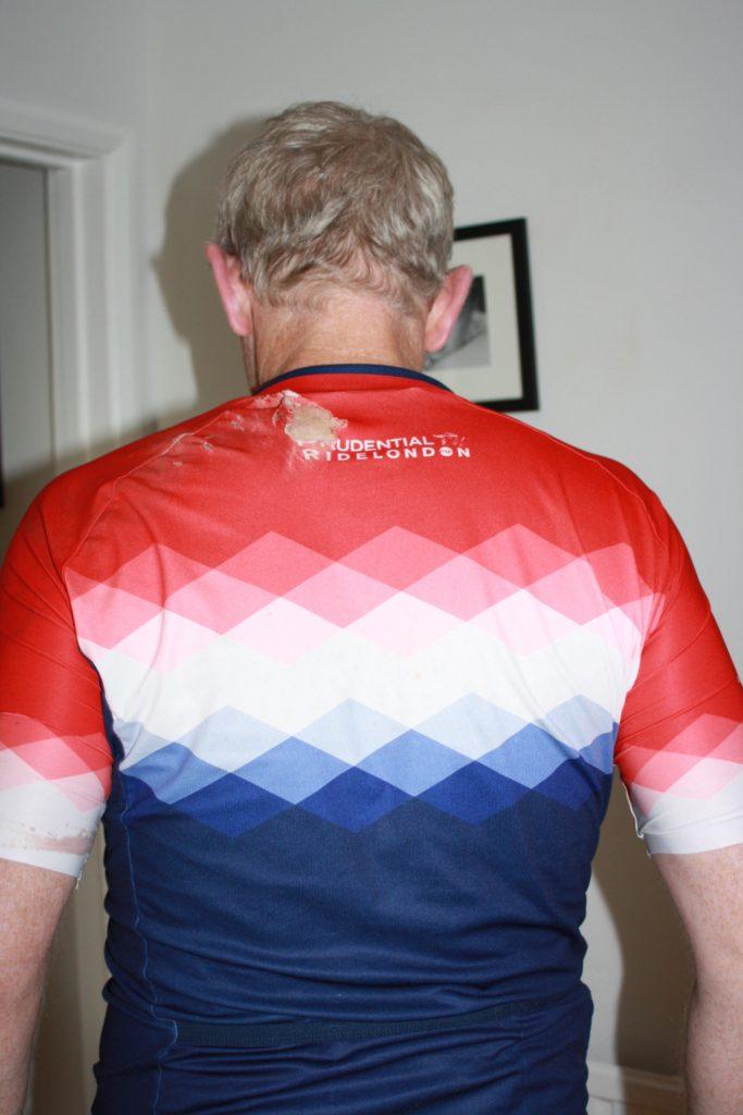 Husband, Bike crash, 365, 366