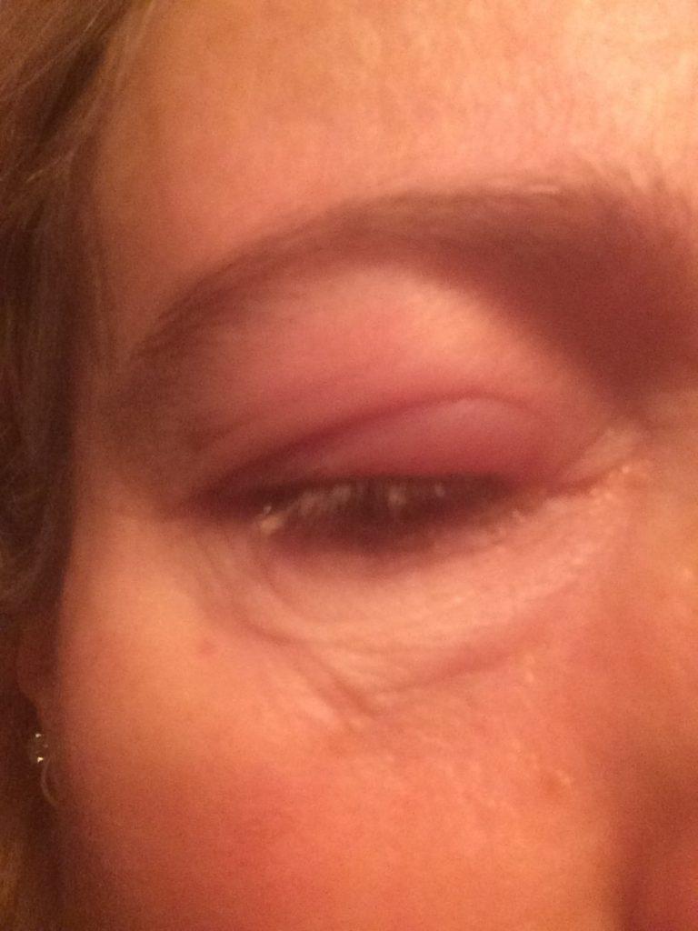 Eye, Blepharitis, 365
