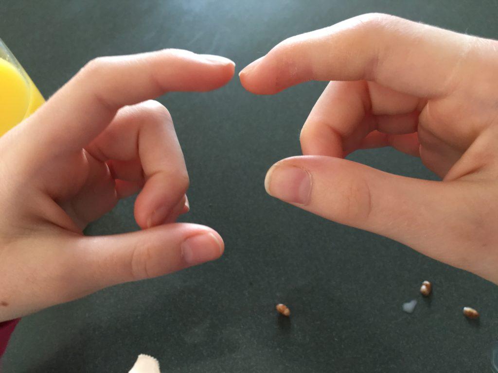 Finger, Injured finger, Swollen finger, Daughter, 365