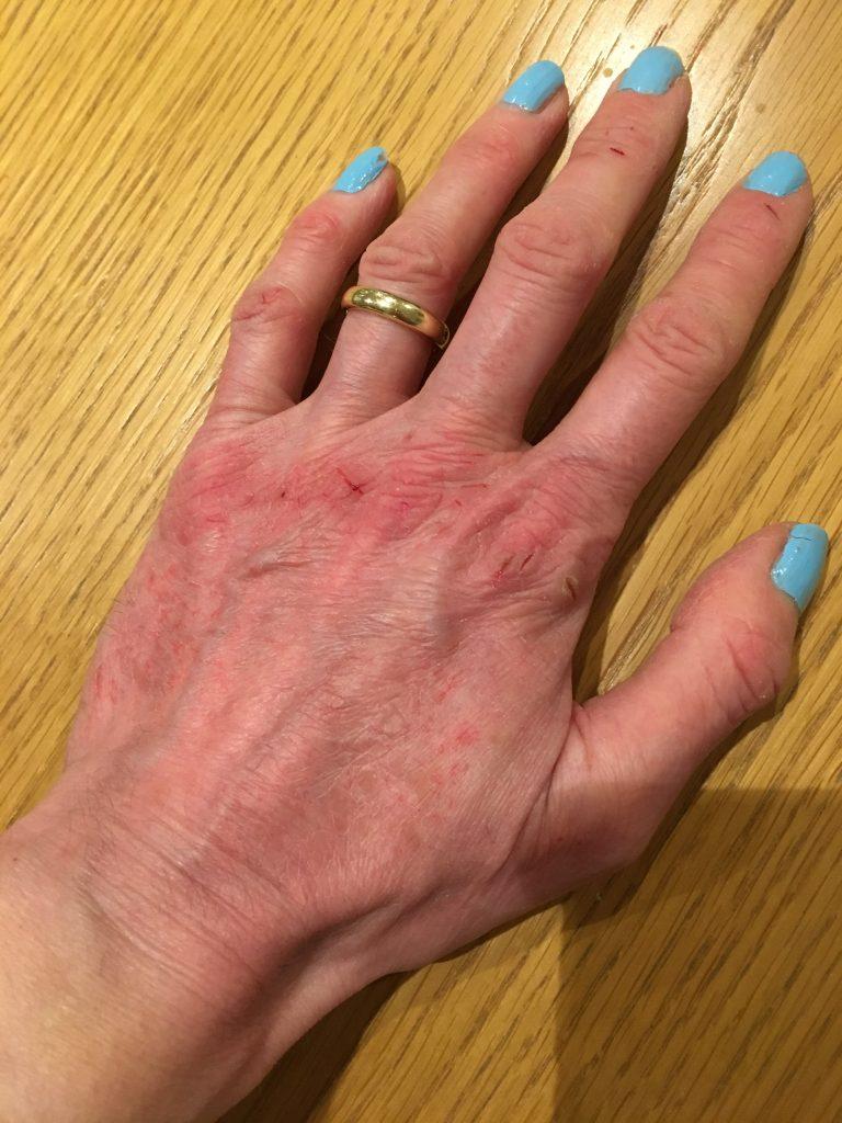 Hand, Eczema, Cold, Winter, 365