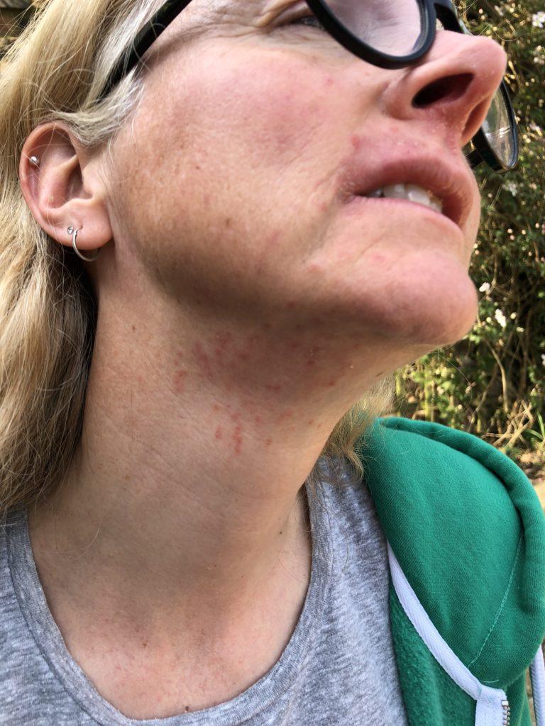 acne, skin, Roaccutane, Back on Roaccutane