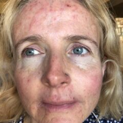 Acne, Roaccutane and skin worries